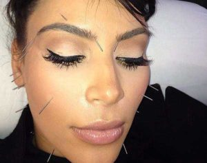 acupuncture treatment Kim Kardashian