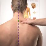 winter acupuncture